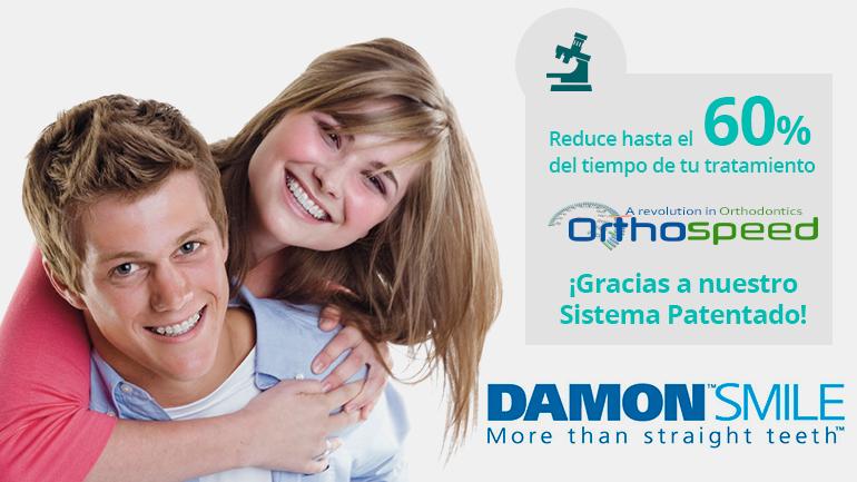 Pregúntanos por tu ortodoncia con brackets damon y reduce hasta un 60% del tiempo del tratamiento