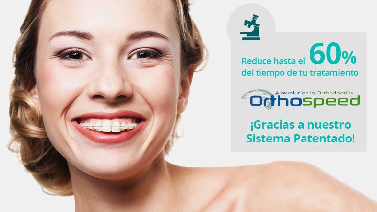 Pregúntanos por tu ortodoncia con brackets de cerámica y reduce hasta un 60% del tiempo del tratamiento