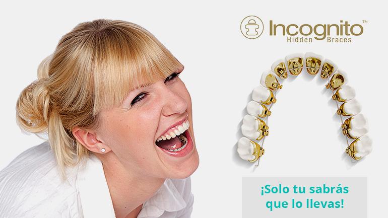 Pregúntanos por tu ortodoncia lingual o brackets icognito y reduce hasta un 60% del tiempo del tratamiento
