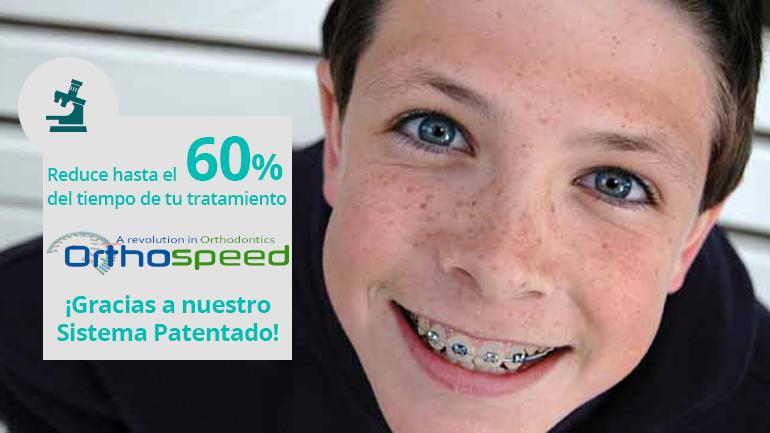 Pregúntanos por tu ortodoncia con brackets metálicos y reduce hasta un 60% del tiempo del tratamiento