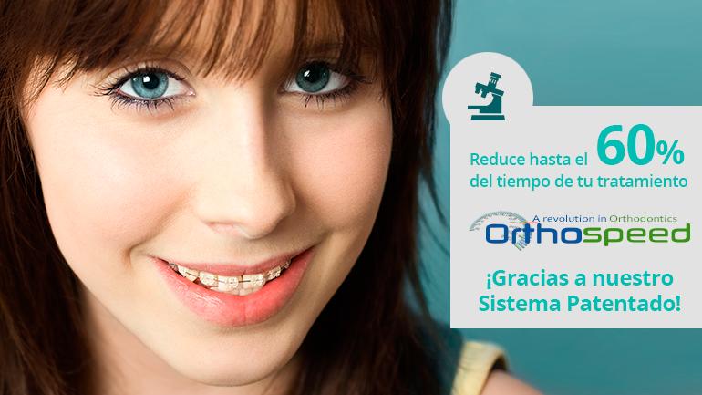 Pregúntanos por tu ortodoncia con brackets Zafiro y reduce hasta un 60% del tiempo del tratamiento