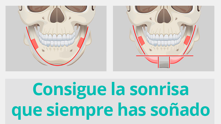 Con la cirugía ortognática conseguirñas la sonrisa que siempre has soñado ¡En tiempo record!