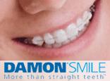 Tipos de Ortodoncia: Brackets Damon