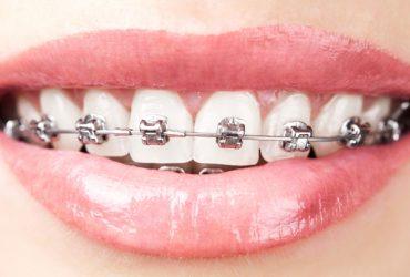 Qué hacer si se rompe un bracket de ortodoncia