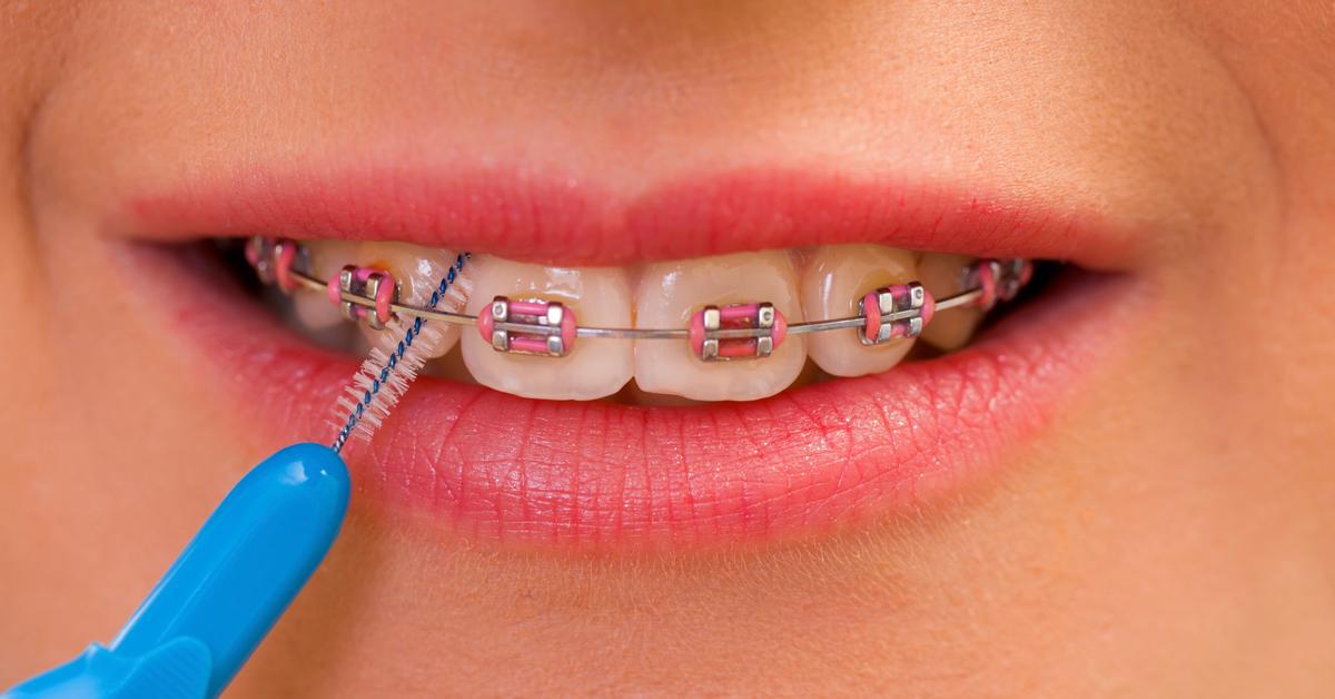 Cómo lavarse los dientes con brackets - Salud bucodental 7e5b4f07a058