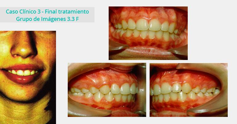 Caso Clínico 3 - Grupo de Imágenes 3.3 F