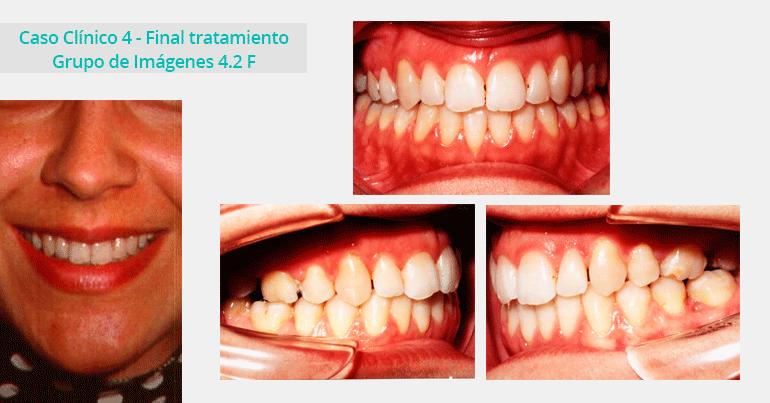 Caso Clínico 4 - Grupo de Imágenes 4.2 F