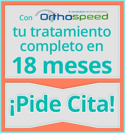 Con Orthospeed el tiempo medio de tu tratamiento con Brackets Metálicos es de 18 meses