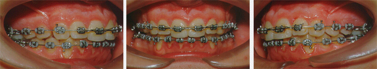 Los tratamientos de ortodoncia corrigen cualquiera de las malposiciones dentarias