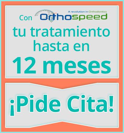 Con Orthospeed el tiempo de tu tratamiento con Ortodoncia Damon será hasta de 12 meses de duración