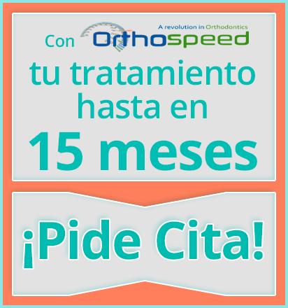 Con Orthospeed el tiempo completo de tu tratamiento con Brackets para Niños Metálicos o Estéticos es hasta de 15 meses