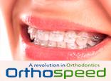 Presupuesto de Ortodoncia: Brackets Estéticos