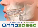 Ortodoncia con Cirugía Ortognática, la opción con mejores resultados