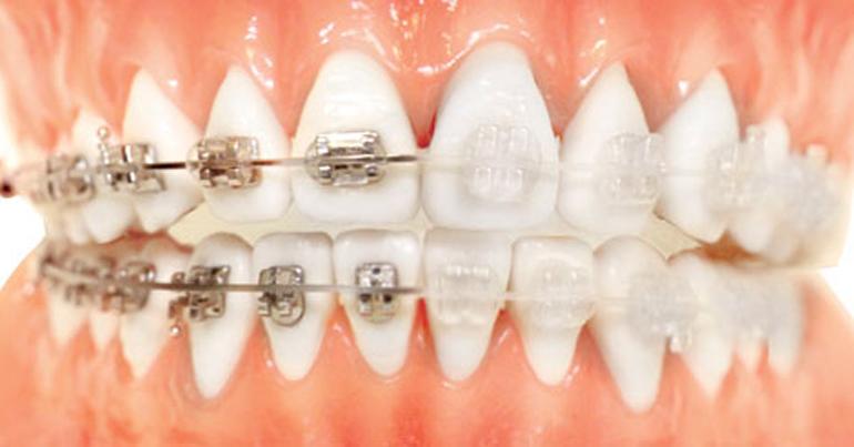 Consultorio de Ortodoncia: sistemas invisibles