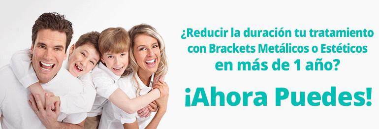 Consigue tu ortodoncia con brackets metálicos o estéticos y reduce el tiempo del tratamiento hasta en 15 meses