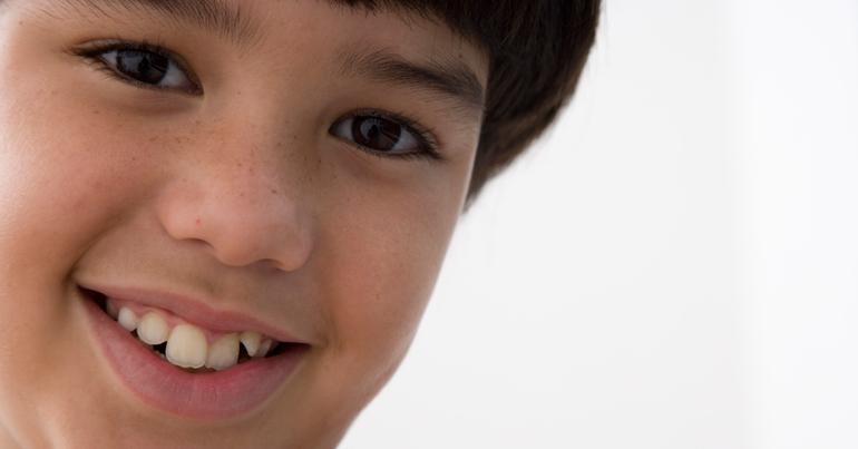 Consultorio de ortodoncia: dientes de leche descolocados