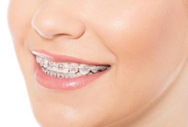 Tipos de ortodoncia: preventiva, interceptiva y correctiva