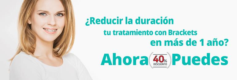 Reduce en más de un año el tiempo de tu tratamiento de ortodoncia con bracket ¡Ahora con un 40% de descuento!